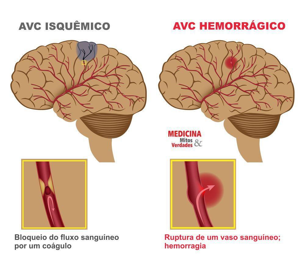 Sintomas e complicações do derrame: AVC isquêmico ou hemorrágico