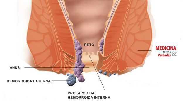 HEMORROIDAS