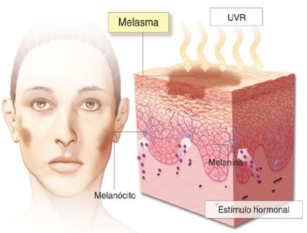 Sol e manchas na pele