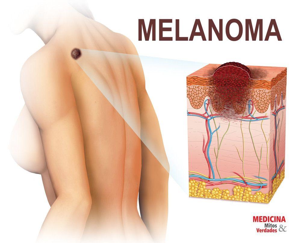 Identifique o melanoma