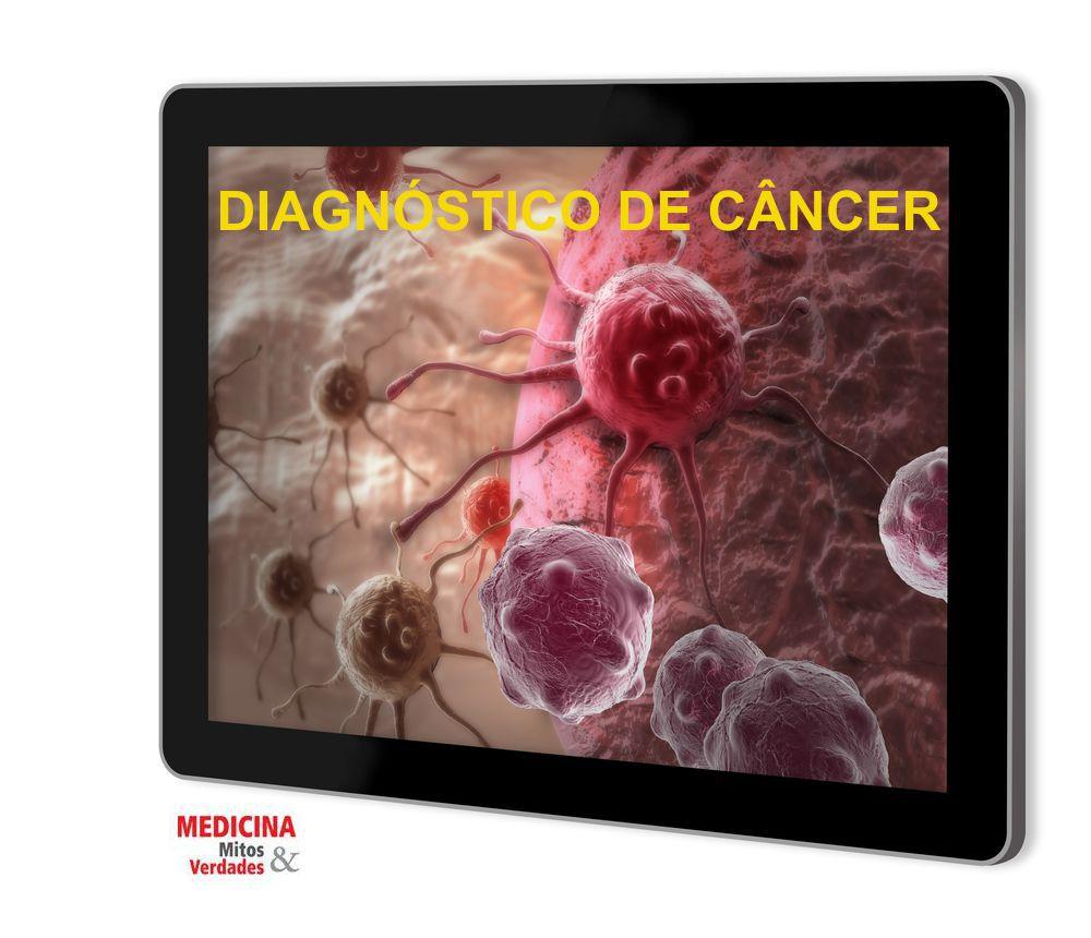 Avanços na medicina permite diagnóstico precoce do câncer