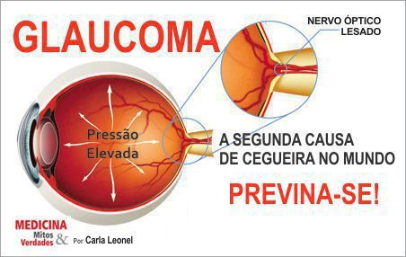 Previna-se contra o glaucoma