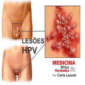 HPV é doença séria e transmitida também pelo sexo oral