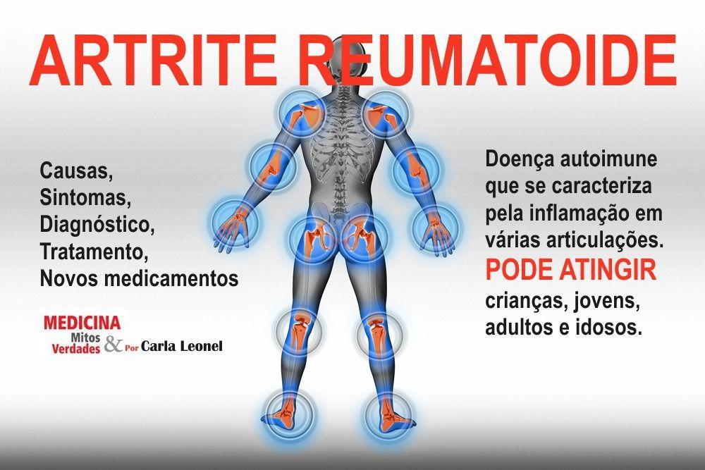Identifique a artrite reumatoide