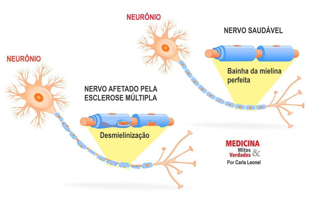 Esclerose não é falta de memória