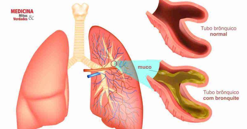 Bronquite - sintomas e tratamento