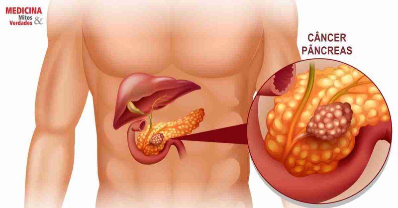 Câncer no pâncreas: causas, sintomas, diagnóstico, tratamento e prevenção