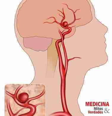 As consequências do aneurisma cerebral