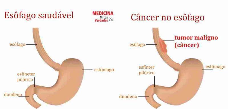 Câncer de esôfago: dificuldade para engolir é um dos sintomas