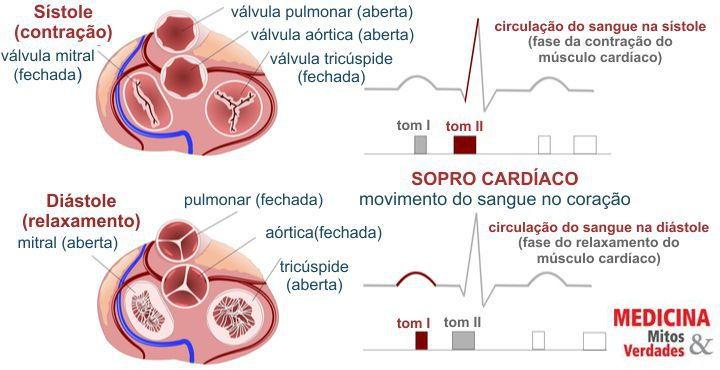 Quando o sopro no coração pode ser grave: causas, sintomas e tratamento