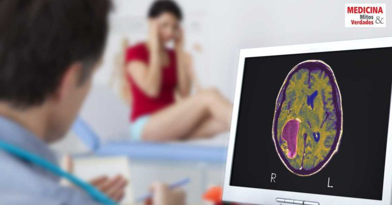 Causas e sintomas do câncer na cabeça: tumor cerebral maligno
