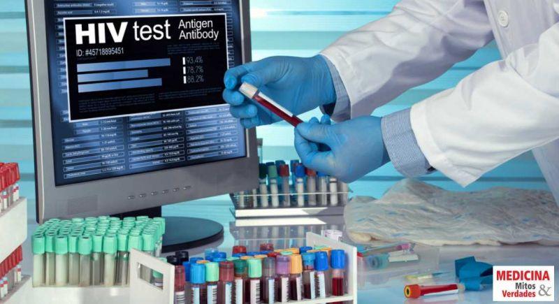 AIDS: tempo necessário entre o contágio do HIV e o resultado positivo do exame