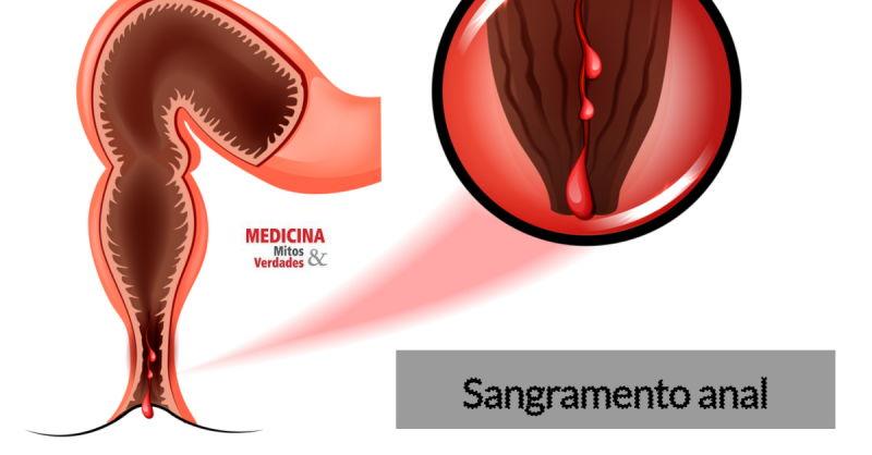 Sangramento no ânus: hemorroida, fissura ou câncer anal
