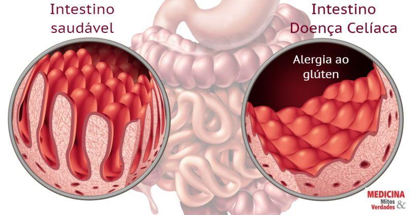 Alergia ao glúten: doença celíaca pode provocar a morte