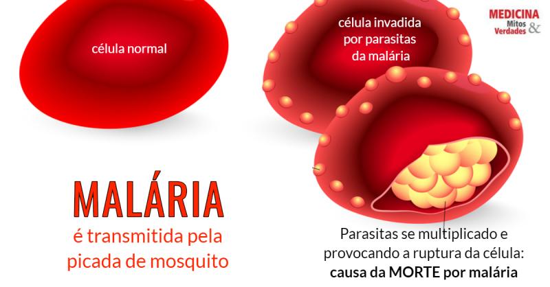 Malária - EgészségKalauz