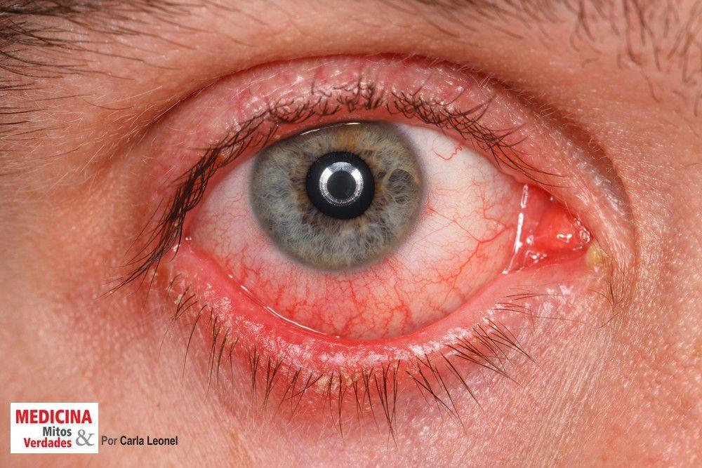 Causas e tratamento da conjuntivite