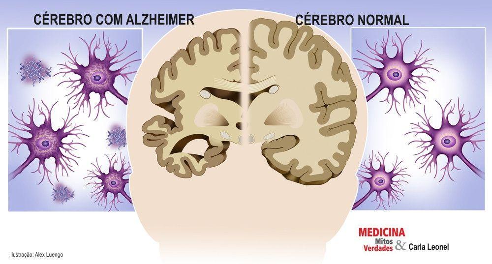 Problema de memória em idoso é alzheimer?