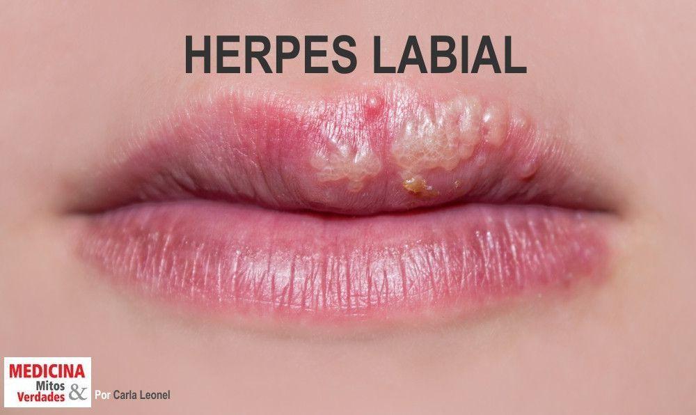 Quem tem herpes labial, tem o genital também?