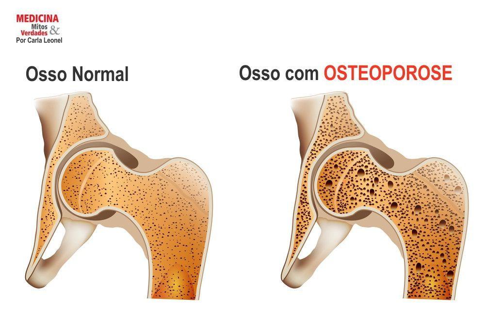COMO TRATAR A OSTEOPOROSE?