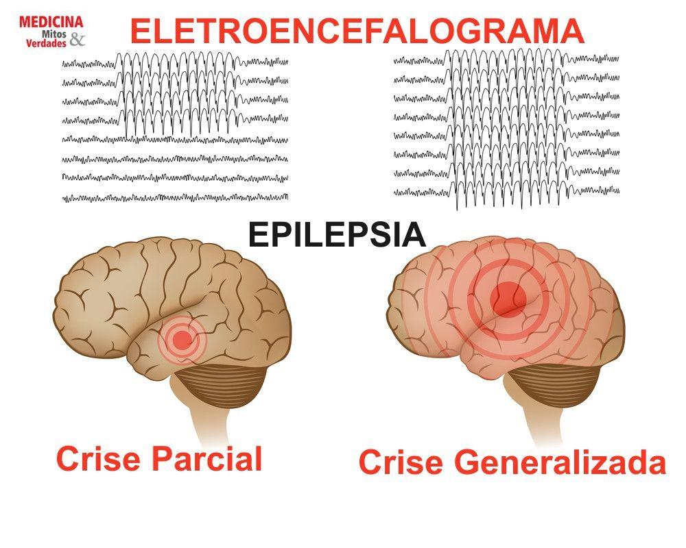 Epilepsia e ataque epilético