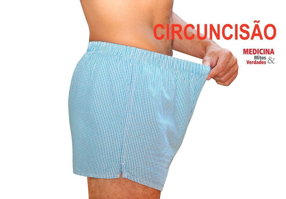 Vantagens da circuncisão