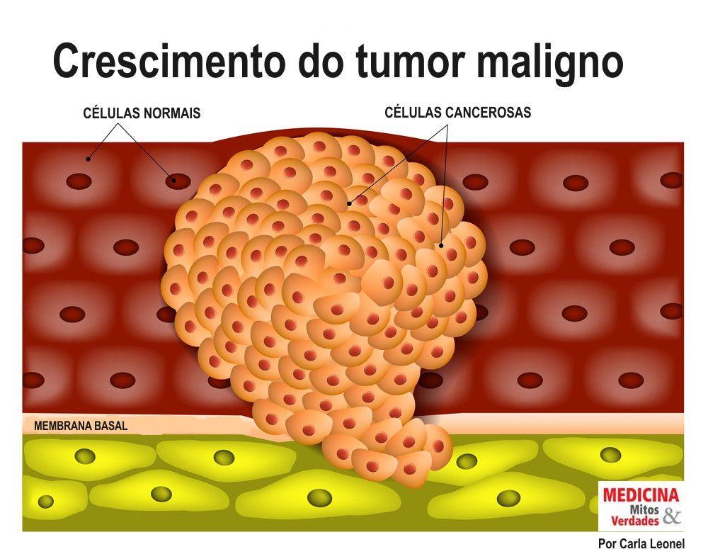 Velocidade do crescimento do tumor