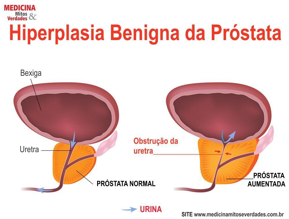 Sintomas urinários na hiperplasia da próstata