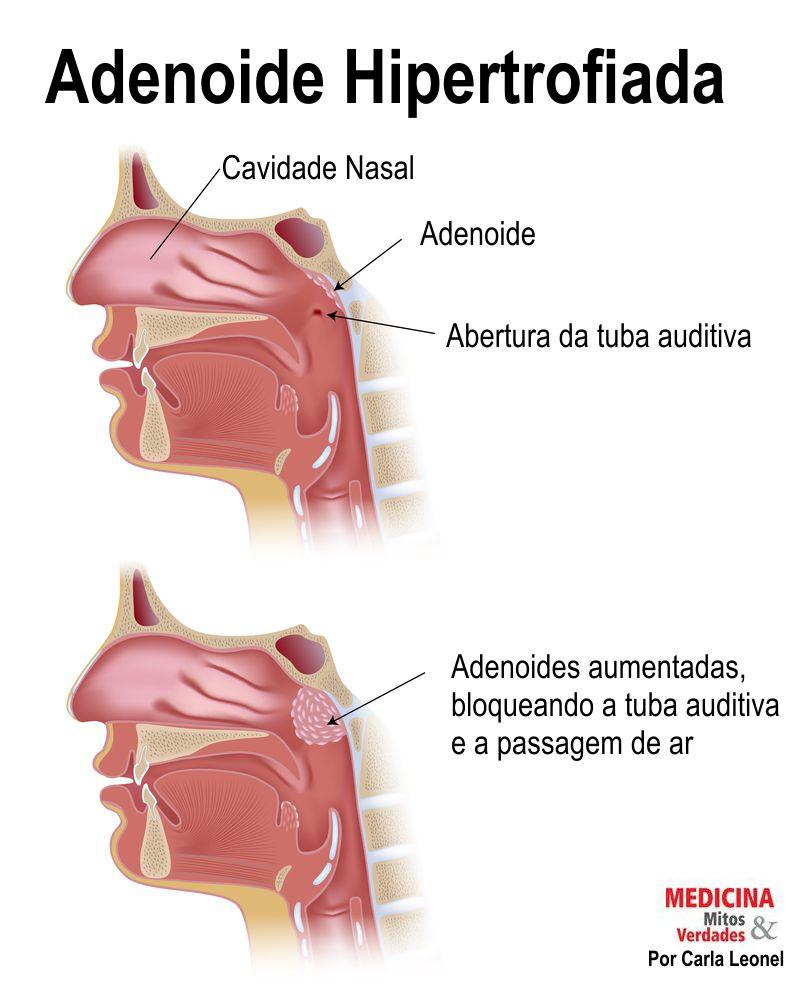 Cirurgia das adenoides - Carne Esponjosa