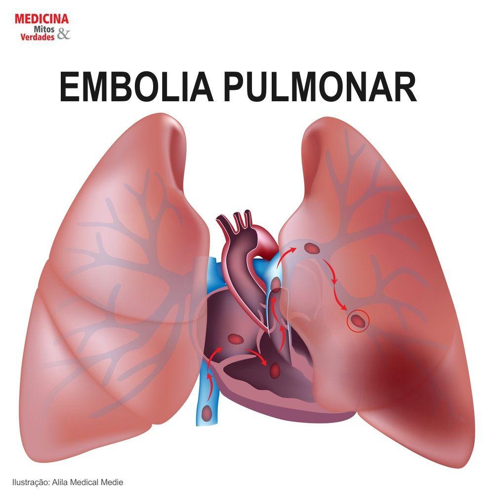 Causas da embolia pulmonar