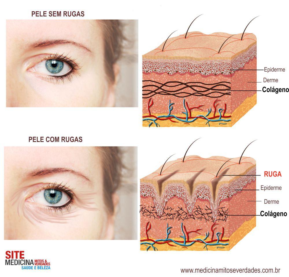 Pitanguy revela os melhores tratamentos para rugas e peles envelhecidas