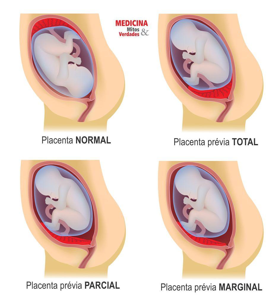 Placenta prévia, causas e consequências