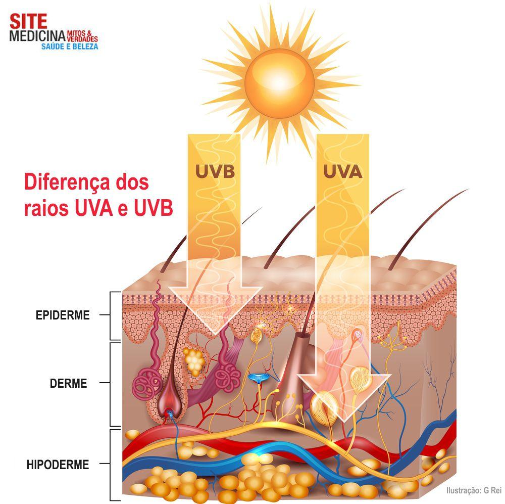 Diferença dos raios UVA e UVB