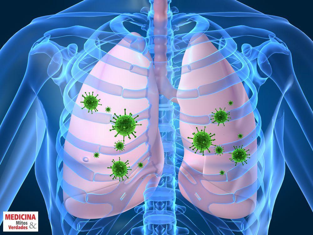 Causas e sintomas da pneumonia