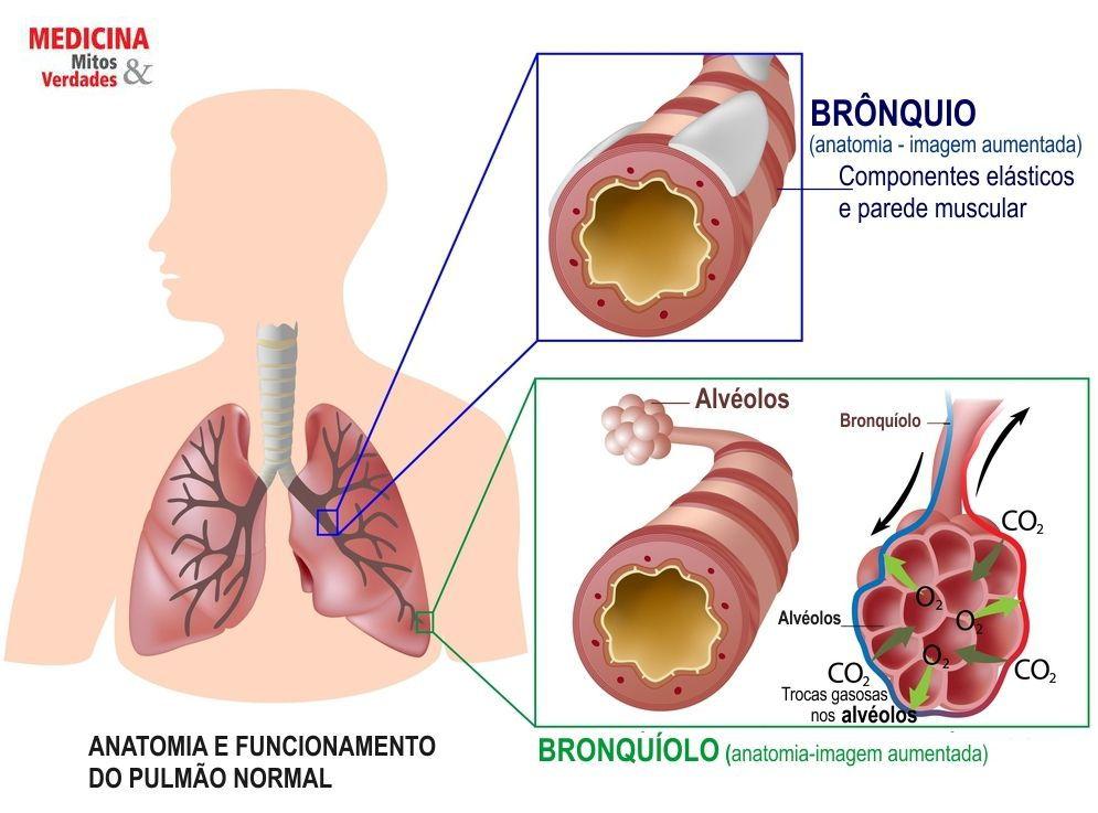 Bronquiectasias: causas, sintomas e tratamento
