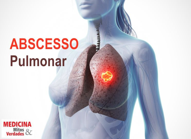 Causas do abscesso pulmonar