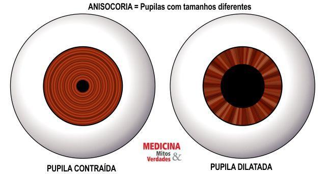 Pupilas dilatadas pode ser sinal de doença