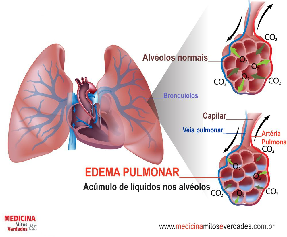 Causas e sintomas do edema pulmonar