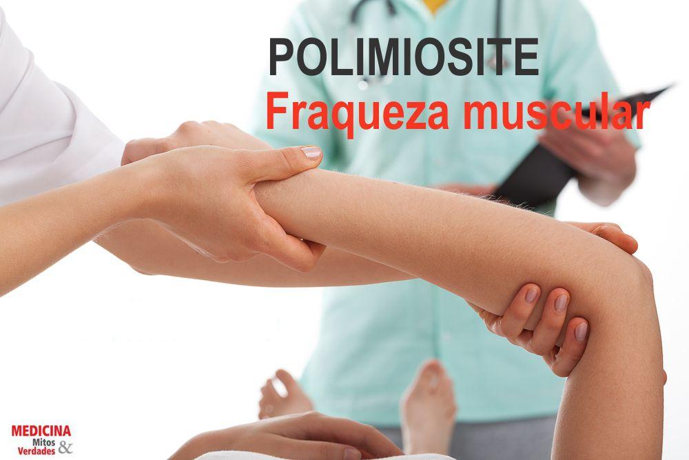 Fraqueza muscular é um dos sintomas de polimiosite