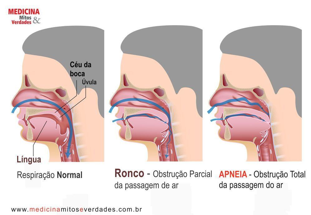 Sintomas, causas, e consequências da Apneia