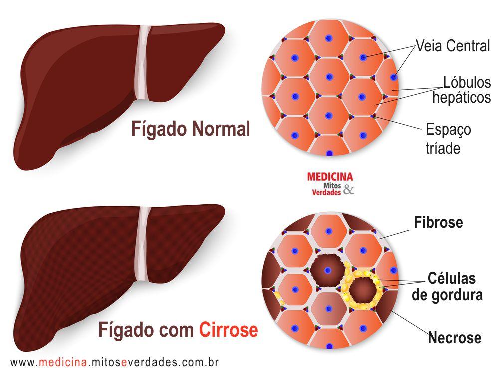 Cirrose hepática e consequências