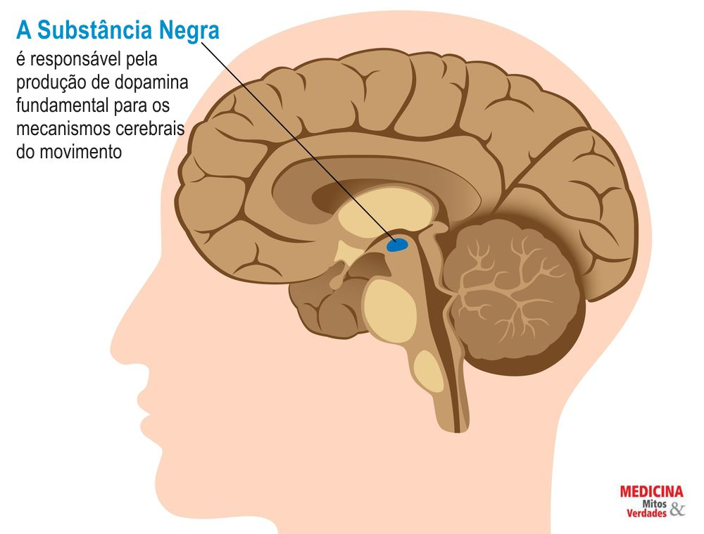 Tremores e Parkinson