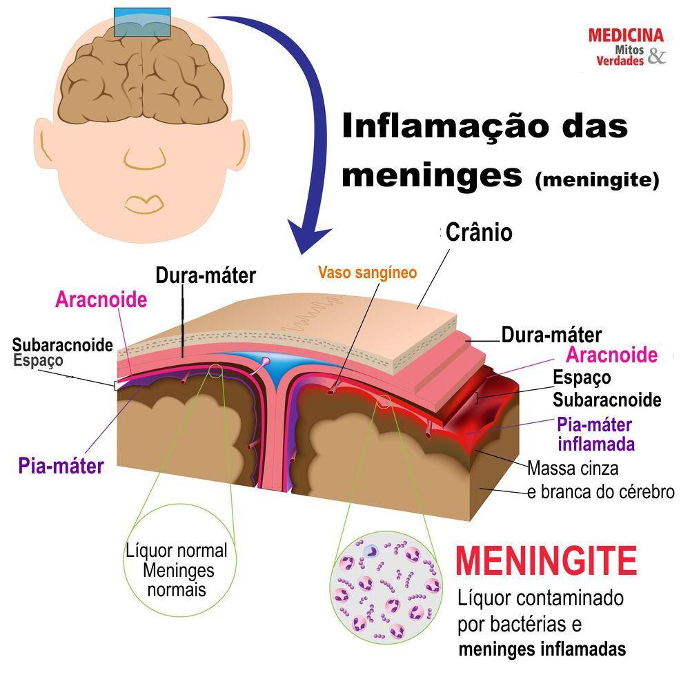 Meningite é a inflamação das meninges