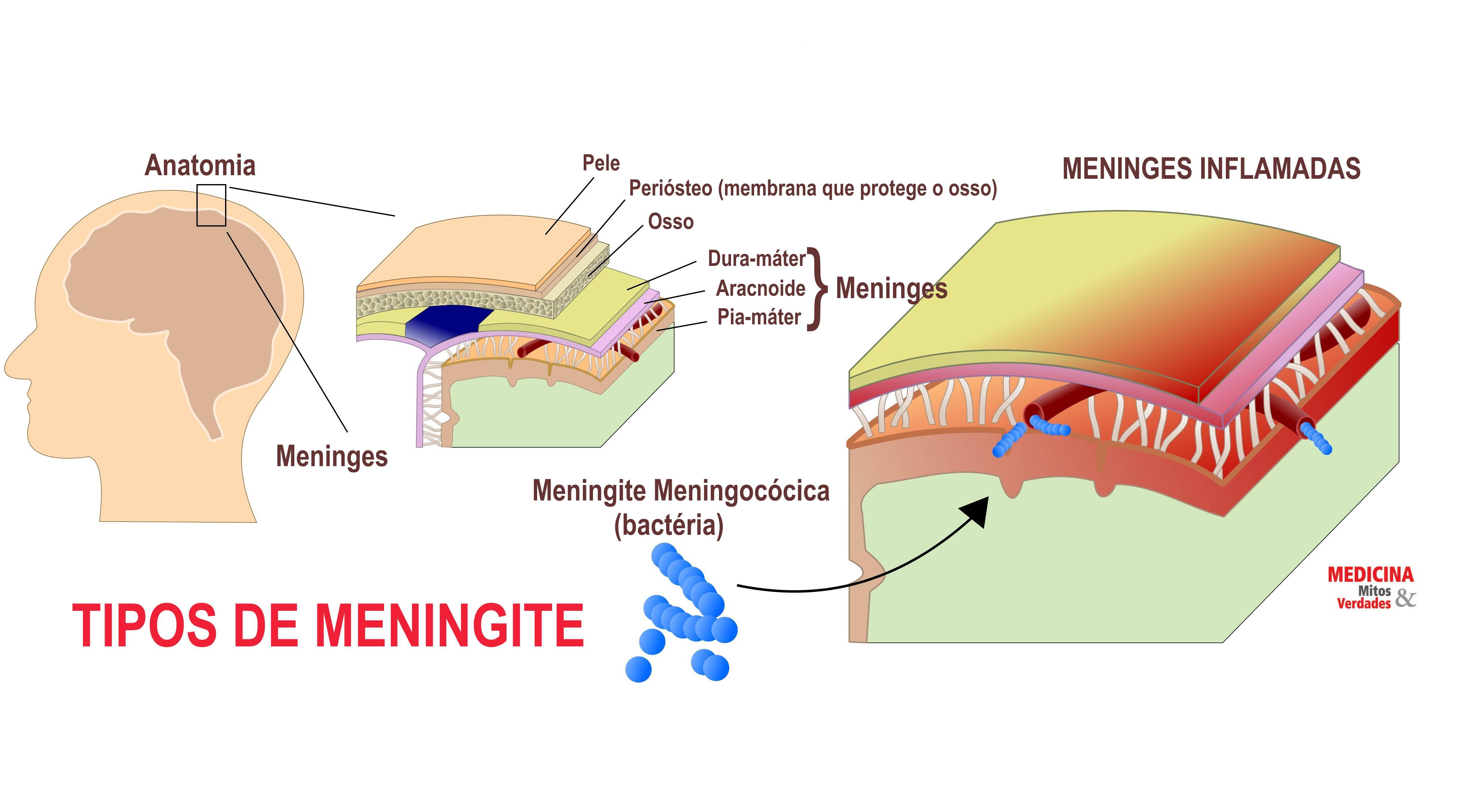 Tipos de meningite infecciosa
