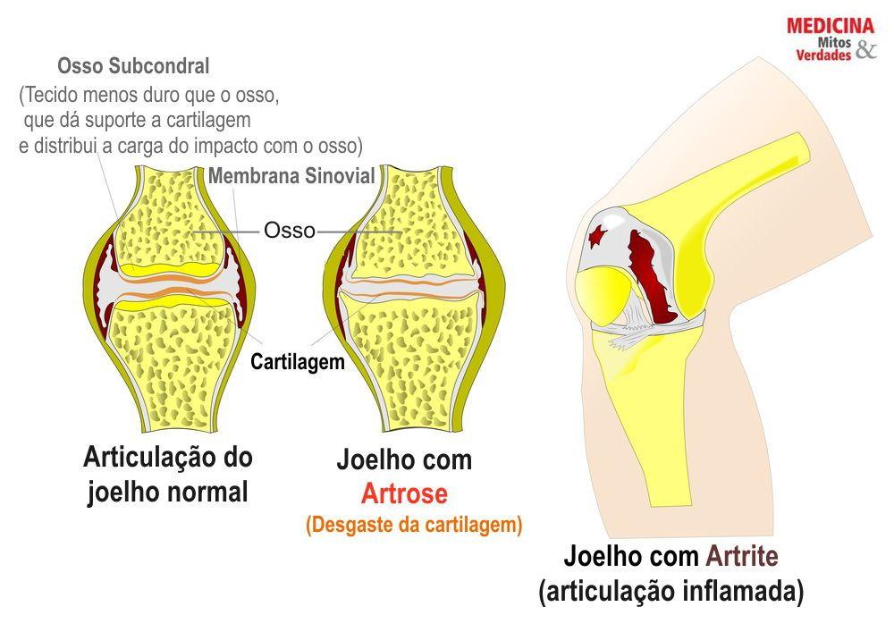 Artrose, formigamento e dor nas juntas
