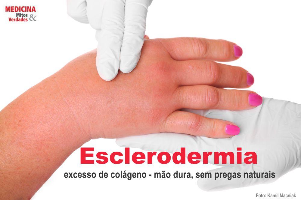 Pele endurecida e esclerodermia