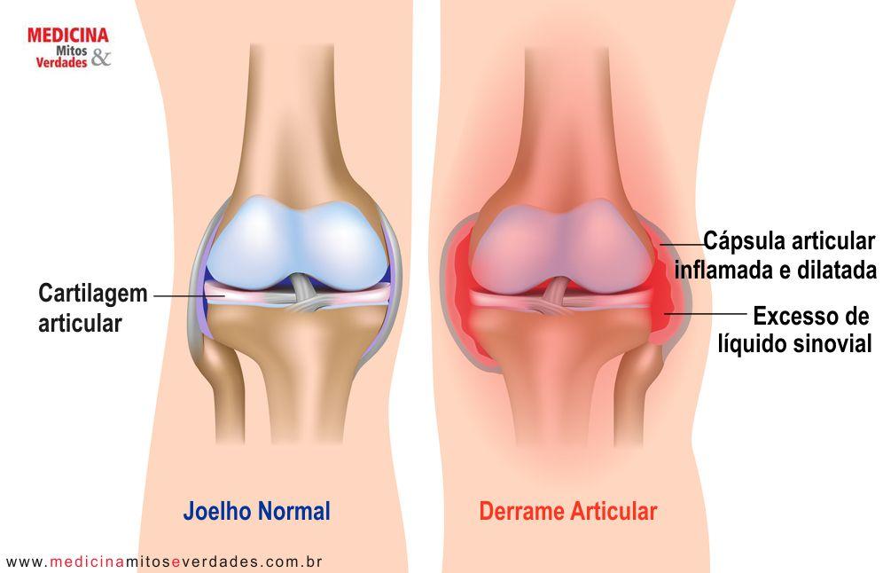 Água no joelho significa derrame na articulação