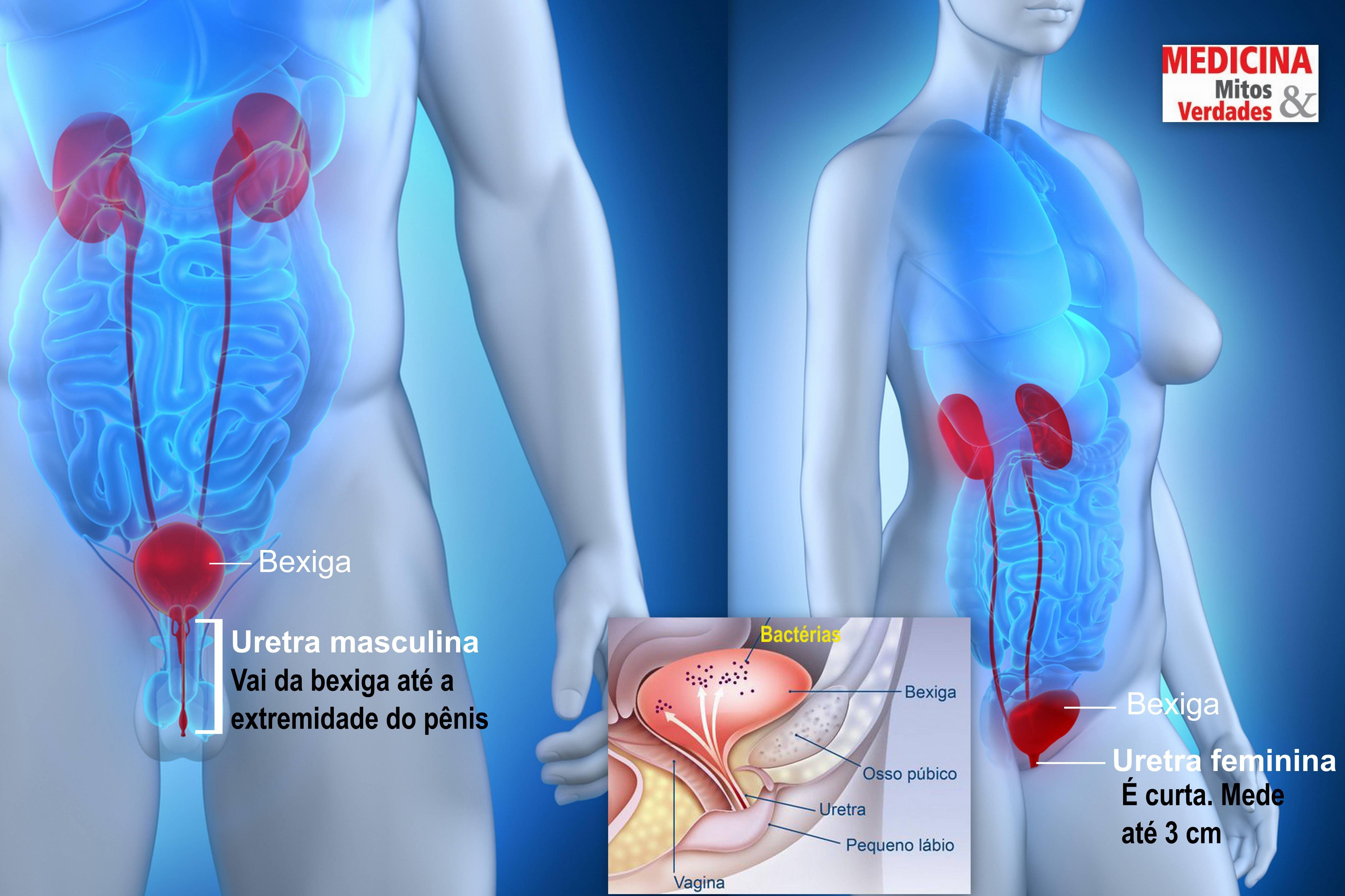 Infecção urinária e sexo