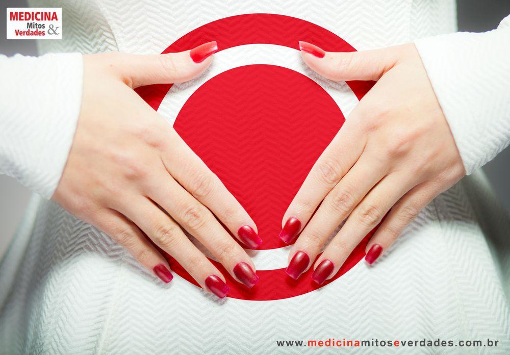Menstruação intensa após laqueadura