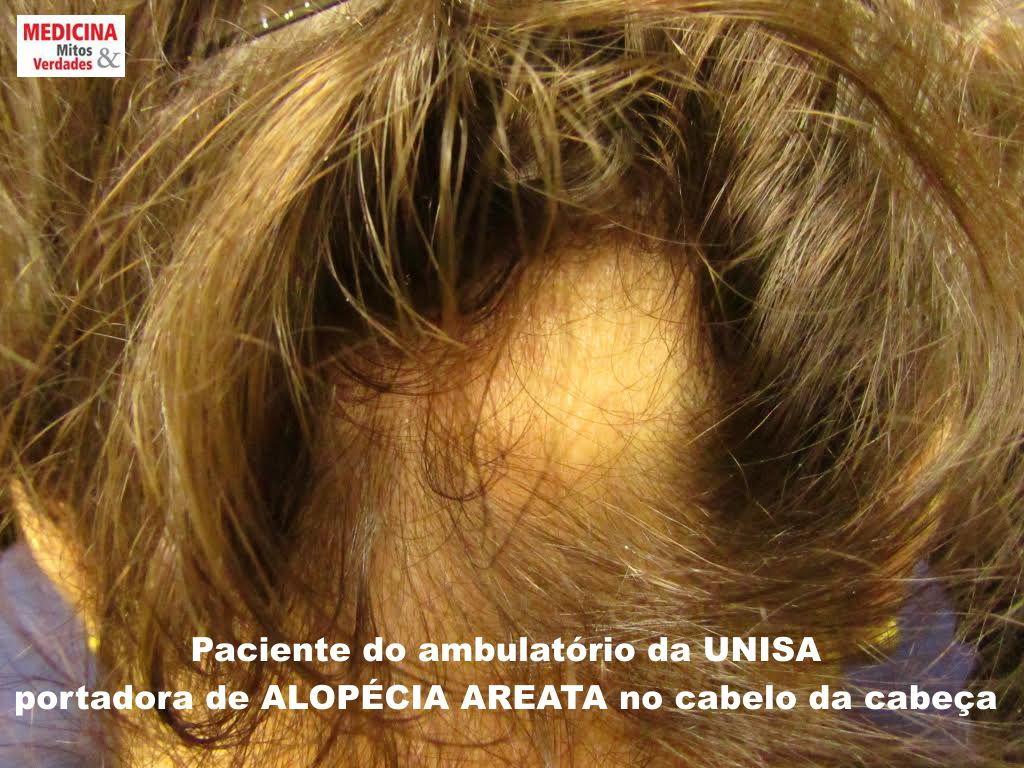 Causas e consequências da alopecia areata