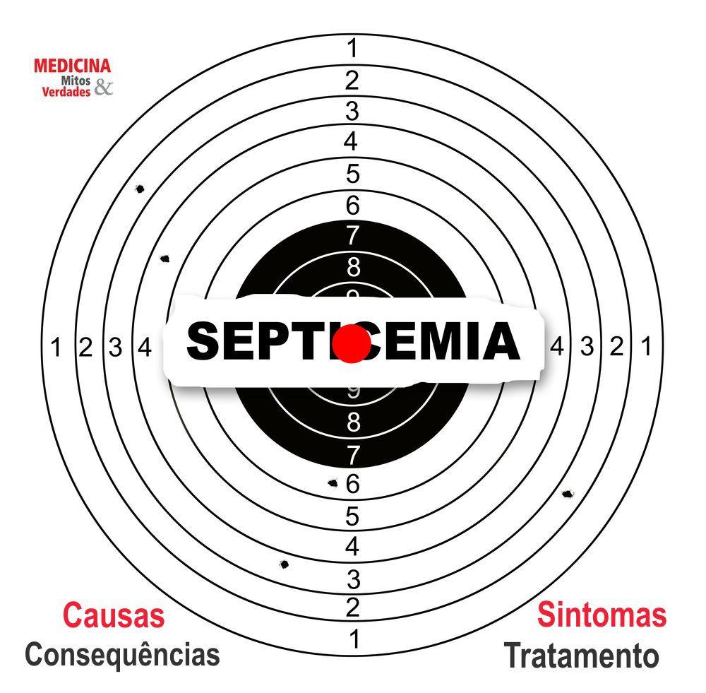 Causas e consequências da septicemia
